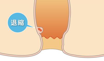 痔の治療-注射療法2